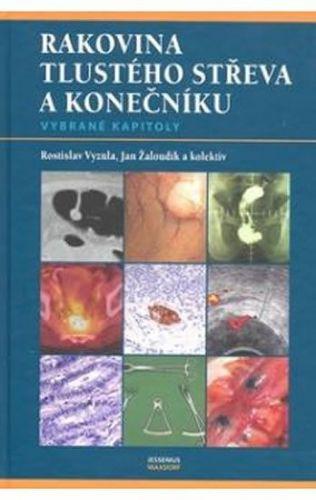 Vyzula Rostislav, Žaloudík Jan a: Rakovina tlustého střeva a konečníku - vybrané kapitoly cena od 442 Kč
