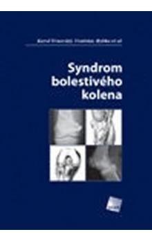 Syndrom bolestivého kolena cena od 702 Kč