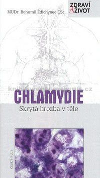 Bohumil Ždichynec: Chlamydie - skrytá hrozba v těle - 2. vydání cena od 0 Kč