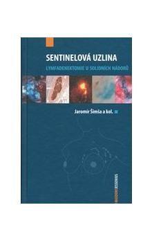 Jaromír Šimša: Sentinelová uzlina cena od 606 Kč