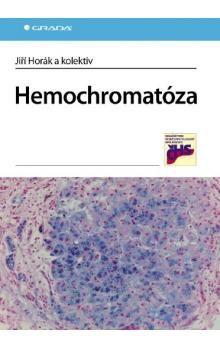 GRADA Hemochromatóza cena od 458 Kč