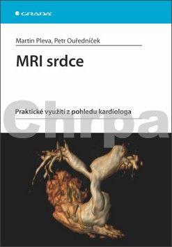 Martin Pleva, Petr Ouředníček: MRI srdce - praktické využití z pohledu kardiologa cena od 123 Kč
