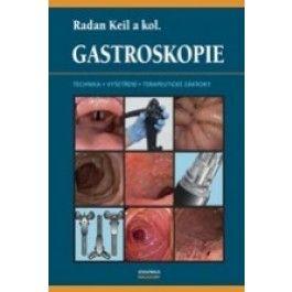 Gastroskopie cena od 540 Kč