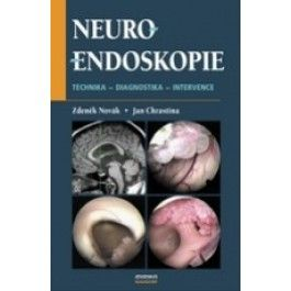 Neuroendoskopie cena od 448 Kč