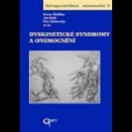 Dyskinetické syndromy a onemocnění cena od 554 Kč