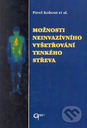 Galén Možnosti neinvazívního vyšetřování tenkého střeva - Pavel Kohout et al. cena od 142 Kč