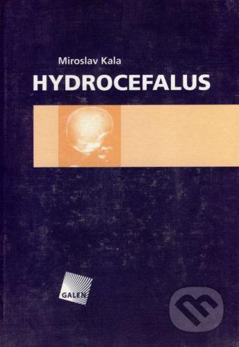 Galén Hydrocefalus - Miroslav Kala cena od 614 Kč