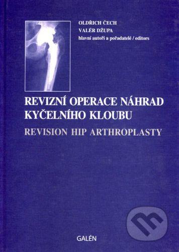 Valér Džupa, Oldřich Čech: Revizní operace náhrad kyčelního kloubu - Valér Džupa, Oldřich Čech cena od 934 Kč