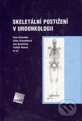 Galén Skeletální postižení v uroonkologii - Ivan Kolombo, Jitka Kolombová, Jan Dvořáček, Tomáš Hanuš cena od 368 Kč