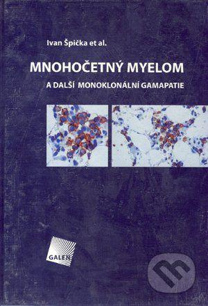Galén Mnohočetný myelom - Ivan Špička et al. cena od 614 Kč