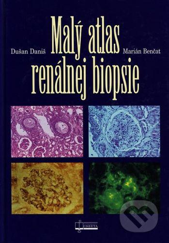 Osveta Malý atlas renálnej biopsie - Dušan Daniš, Marián Benčat cena od 31 Kč
