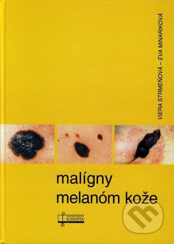 Osveta Malígny melanóm kože - Viera Strmeňová, Eva Minariková cena od 65 Kč