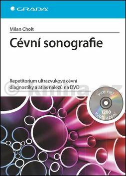 Milan Cholt: Cévní sonografie - repetitorium ultrazvukové cévní diagnostiky a atlas nálezů na DVD cena od 529 Kč