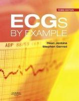 Elsevier Ltd ECG by Example - Jenkins, D., Gerred, S.J. cena od 902 Kč