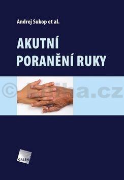 Andrej Sukop: Akutní poranění ruky cena od 440 Kč