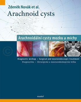 Zdeněk Novák: Arachnoid cysts - Arachnoidální cysty mozku a míchy cena od 562 Kč