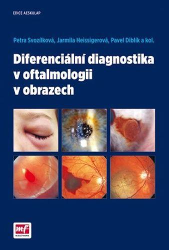 Petra Svozílková, Jarmila Heissigerová, Pavel Diblík: Diferenciální diagnostika v oftalmologii v obrazech cena od 336 Kč
