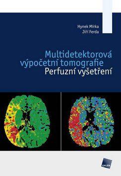 Hynek Mírka, Jiří Ferda: Multidetektorová výpočetní tomografie cena od 352 Kč