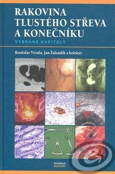 Rostislav Vyzula; Jan Žaloudík: Rakovina tlustého střeva a konečníku cena od 28,09 €